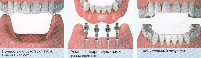 Базальная имплантация зубов
