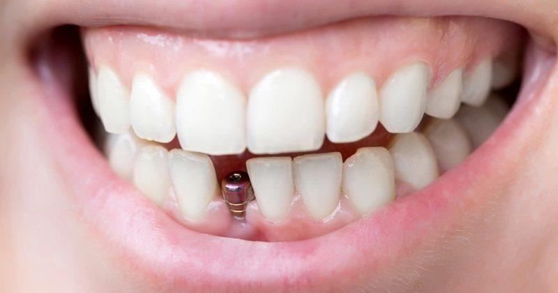 одномоментная базальная имплантация зубов